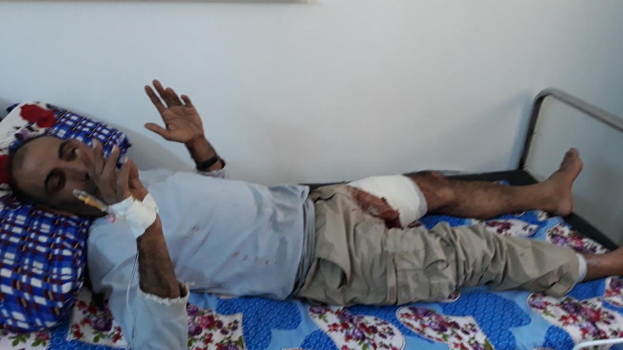 صورة إصابة عضو في فوج الإطفاء أثناء إخمادهم لحريق في تل تمر