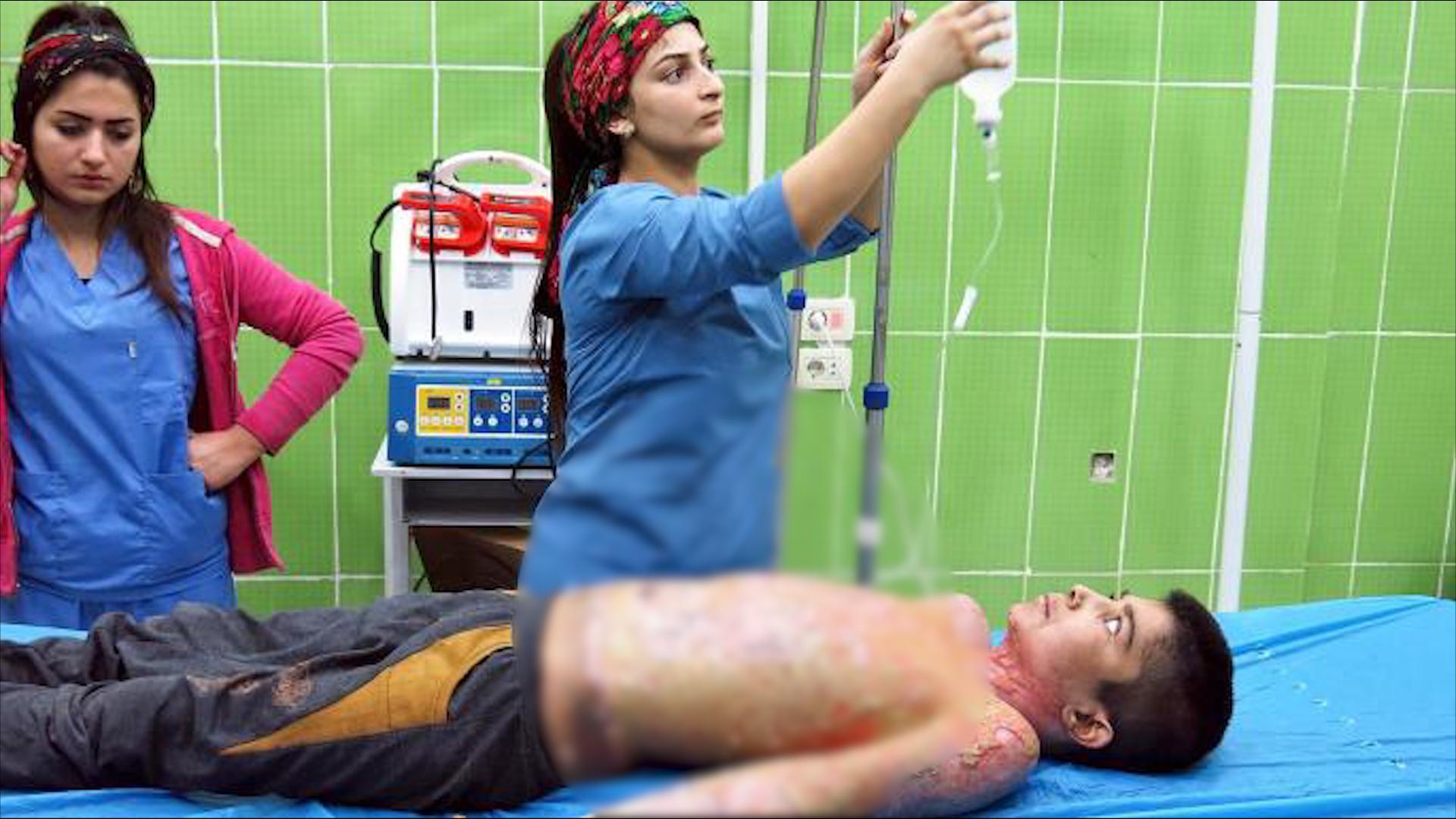 Photo of المرصد السوري لحقوق الإنسان: تقارير طبية تؤكد استخدام تركيا أسلحة محرمة دولياً شمال سوريا