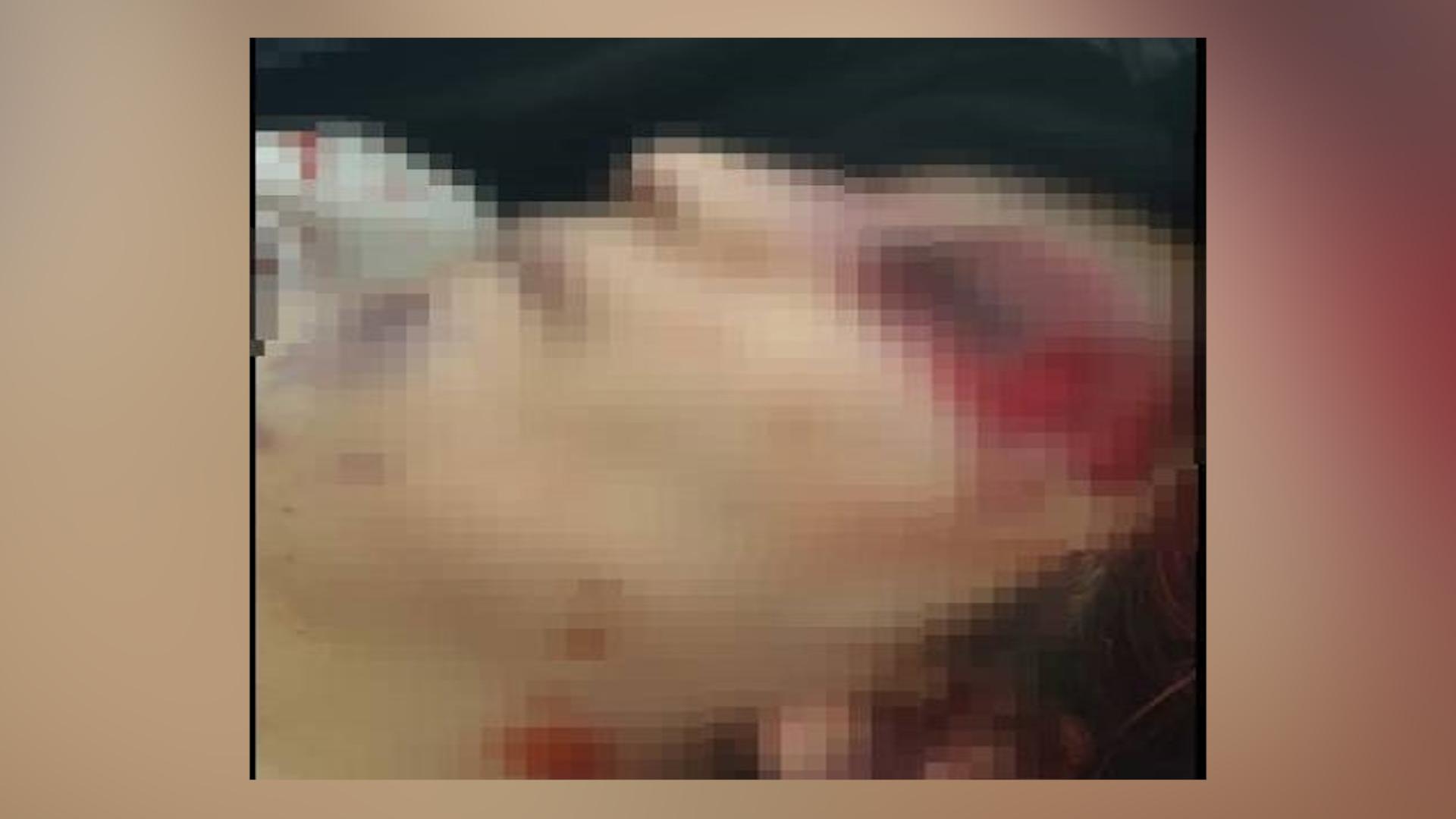 Photo of Li Efrînê termê jineke Efrînî kuştî hat dîtin