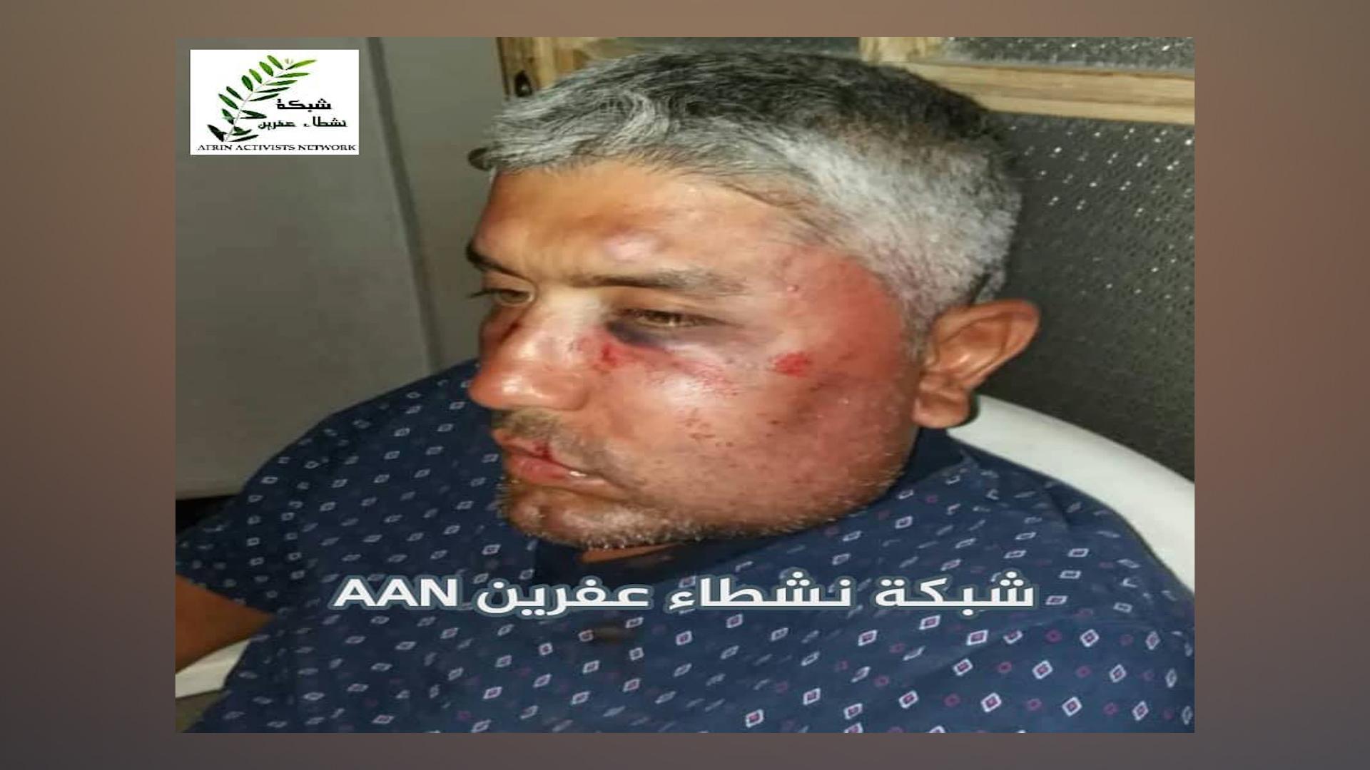 Photo of Çeteyan sivîlek Efrînî bi navê Ehmed Bilal êşkence kir