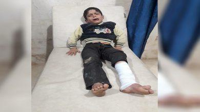 Photo of Ji ber êrîşên dewleta Tirk a dagirker zarokek li gundê Şehbayê birîndar bû